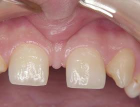 歯 乳歯 すき っ 大人の歯が欠損してて、乳歯のままの方